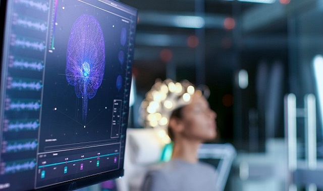Role of alpha brainwaves in boosting creativity and memory